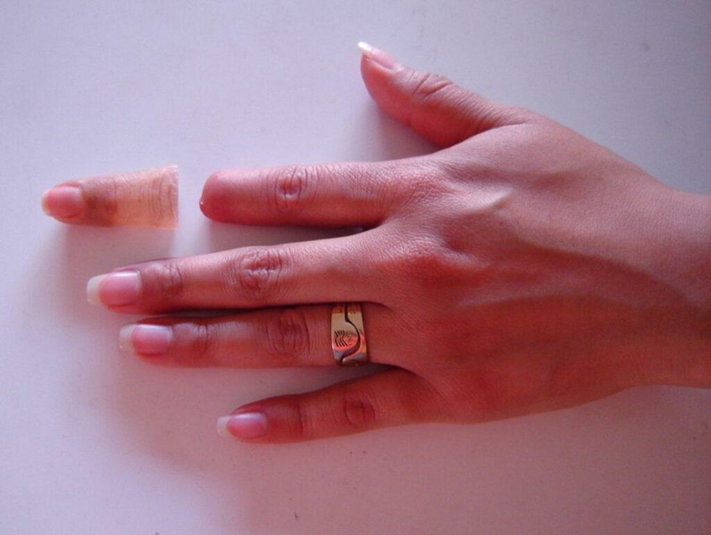 زراعة اصابع اليد او تركيب أصابع صناعية